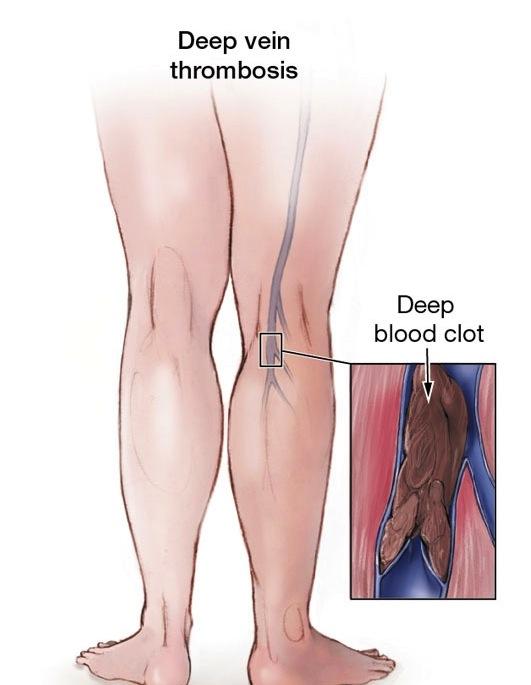 Thrombosis | Bombay Vein Clinic