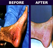 Venous ulcer - wound healing
