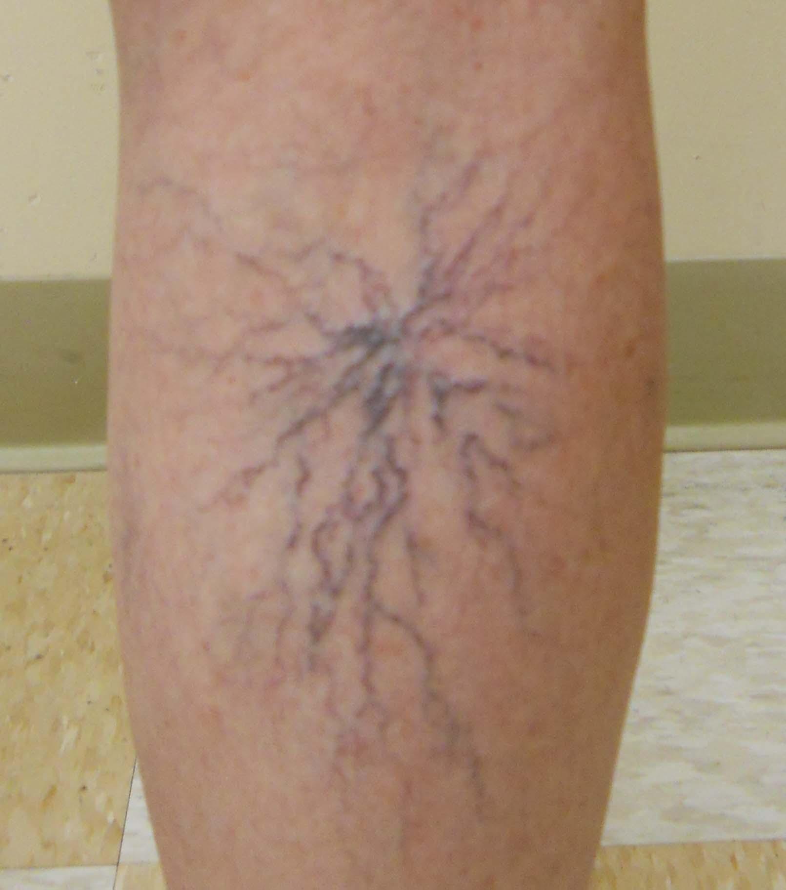 varicose veins | bombay vein clinic